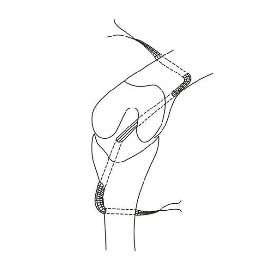 ZLig – técnica de reemplazo del ligamento cruzado intraarticular, EICKEMEYER